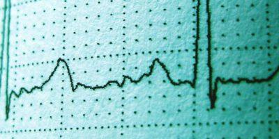 Photoplethysmography vs electrocardiogram-ecg
